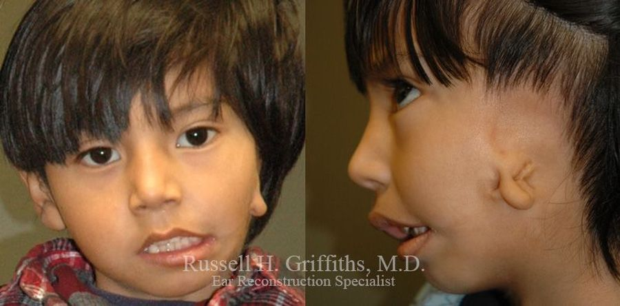 Straight-on and profile shot of boy with microtia and hemifacial microsomia  Dr. Russell H. Griffiths MD