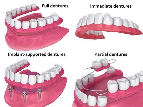 Full vs. immediate vs. implant-supported vs. partial dentures