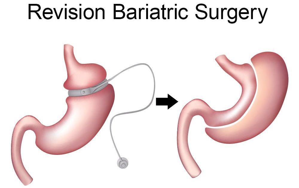 Bariatric Surgery Revision Tijuana Mexico Dr Fernando Garcia