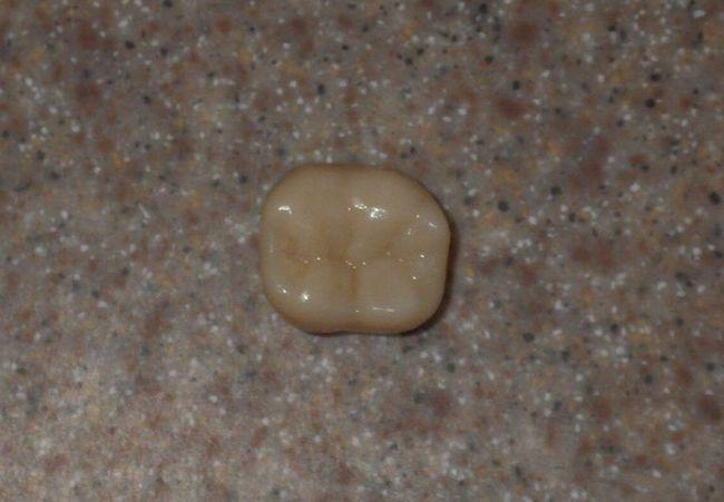 a molar