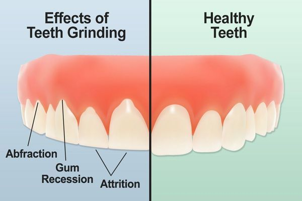 Teeth grinding versus healthy teeth