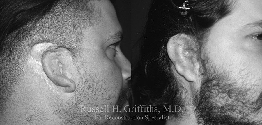 Before and After revision surgery for grade III microtia young man