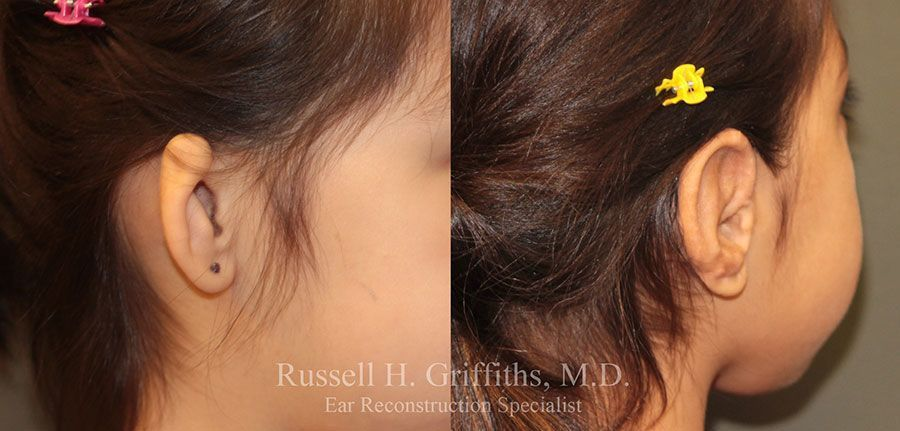 Before and After: One-stage microtia ear reconstruction surgery closeup of ear.