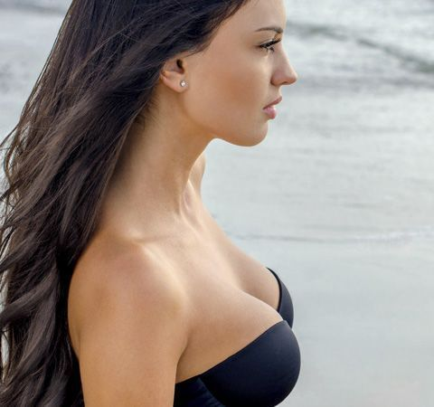 Image of breast surgery patient