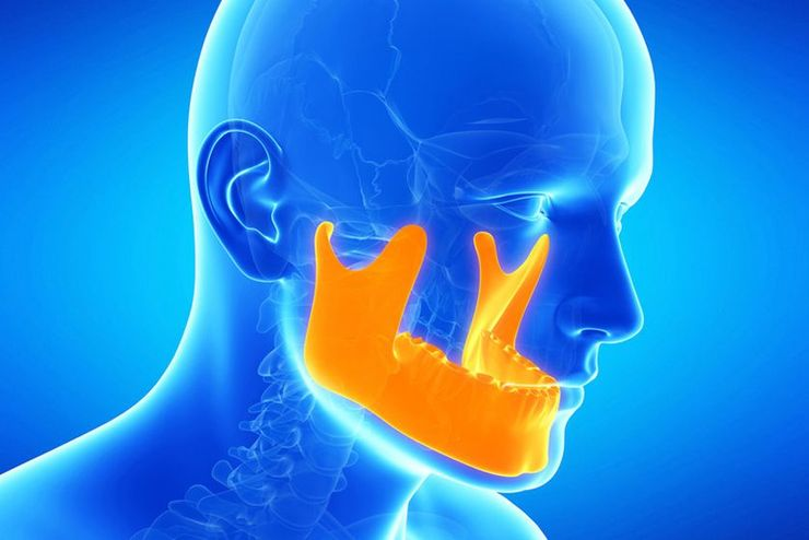 An illustration of the effects of orthognathic surgery