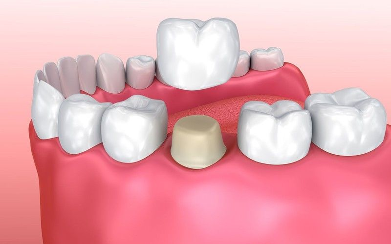Image result for crown tooth