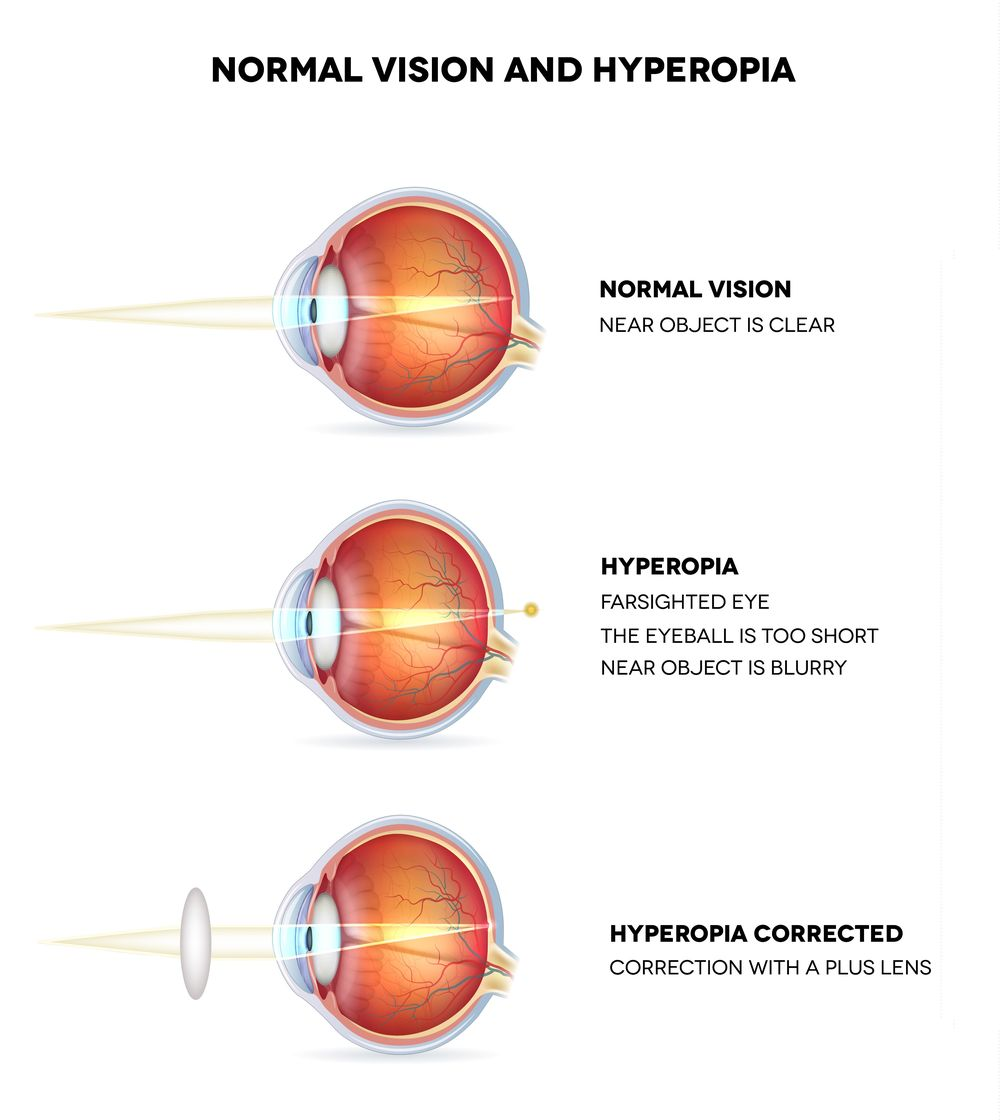Diagram demonstrating how light is focused in a normal eye, an eye affected by hyperopia, and a hyperopic eye that has been corrected.