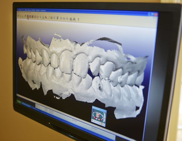 3-D imaging showing dental technology