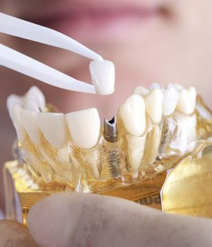 Woman placing crown on dental implant model