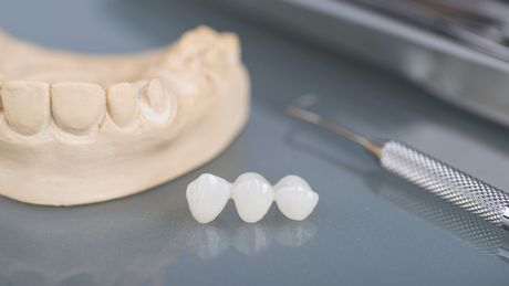 Photo of a dental bridge next to a mold of teeth