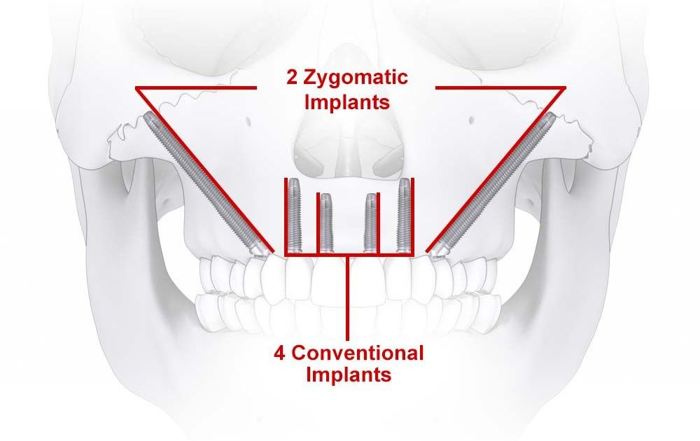 Zygomatic Implants Park City Ut Dr Wade Peers Dental Implants