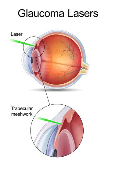 Laser technology used for glaucoma treatment.