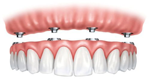 Implant-supported denture and abutments