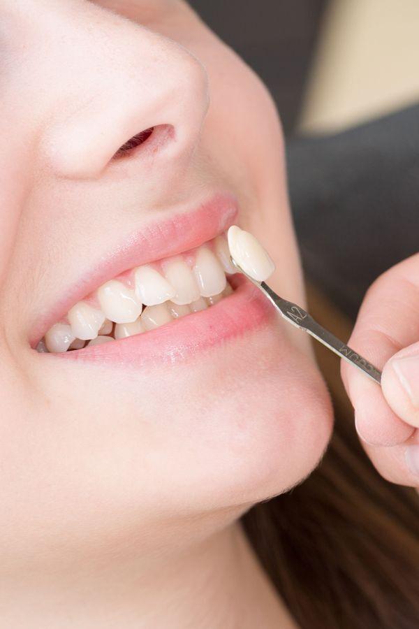 Veneer being held up against a patient's tooth.