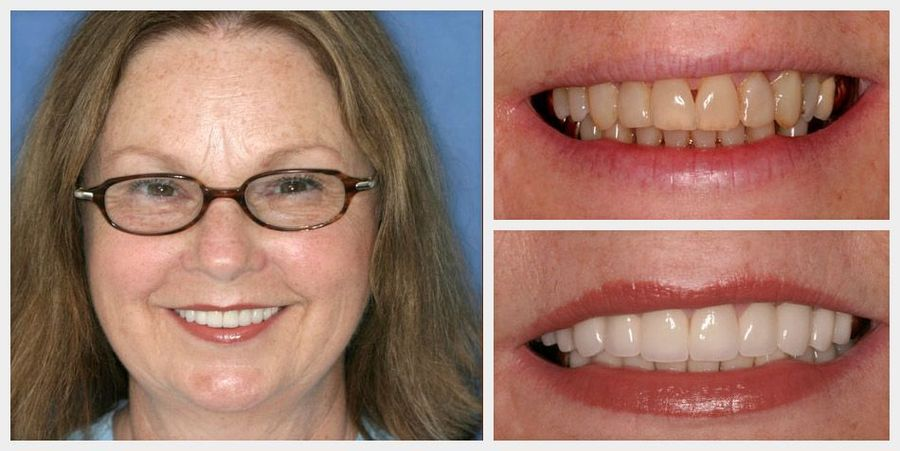 Actual before and after photos of a patient with porcelain veneers