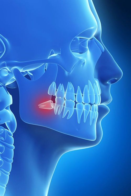 Illustration of wisdom tooth removal.
