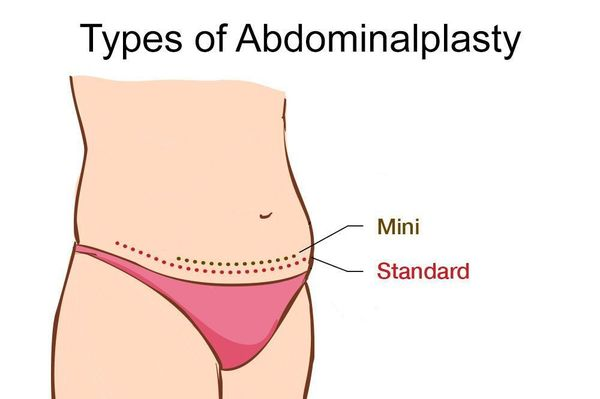 Illustration of traditional and mini abdominoplasty