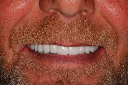 Permanent Dental Implants