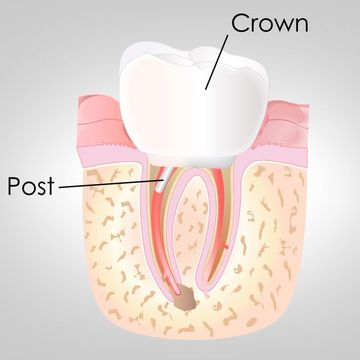 Diagram of crown fitting over tooth