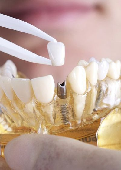 Model of crown and dental implant