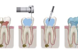 Illustration showing stages of endodontic surgery