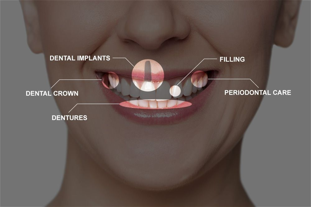 Photo pointing to various areas of mouth and listing full mouth reconstruction procedures
