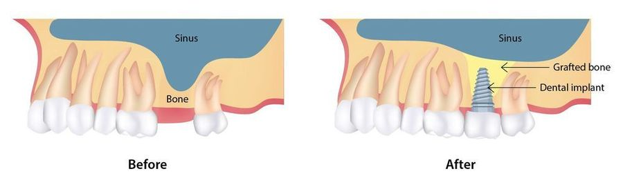 Diagram comparing density of upper jawbone before and after a sinus lift.