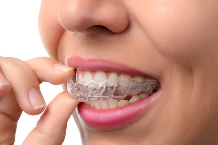 Woman putting Invisalign tray on