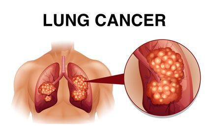 Illustration highlighting the effects of lung cancer