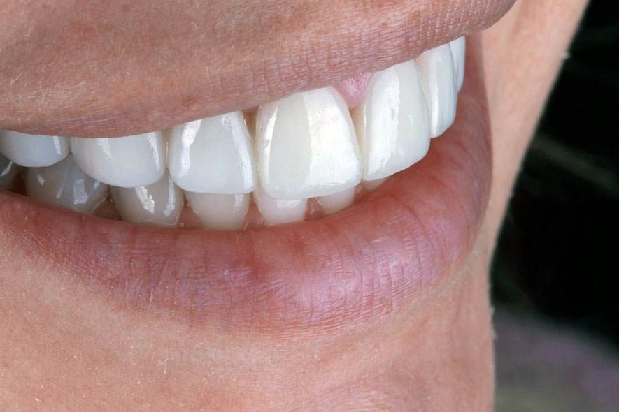image of smile with porcelain veneers