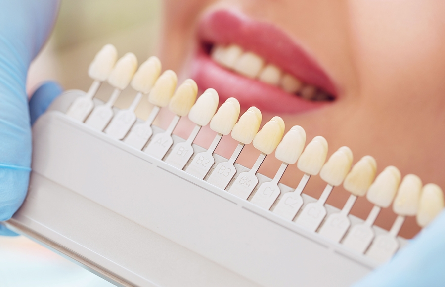 Teeth whitening patient with shade guides next to teeth