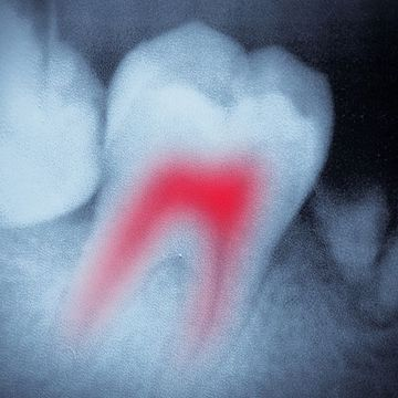 X-ray of showing highlighted root canal in prep for general dentistry procedure