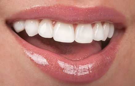 Close up of woman's teeth and glossy lips