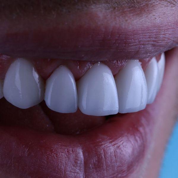 Closeup of patient's smile