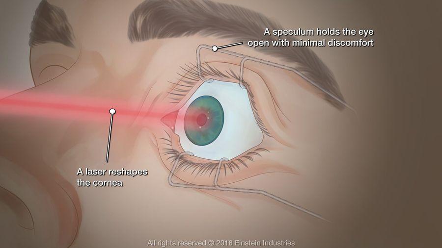 Illustration of PRK surgery