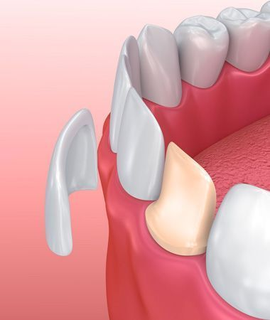 Illustration of porcelain veneers.