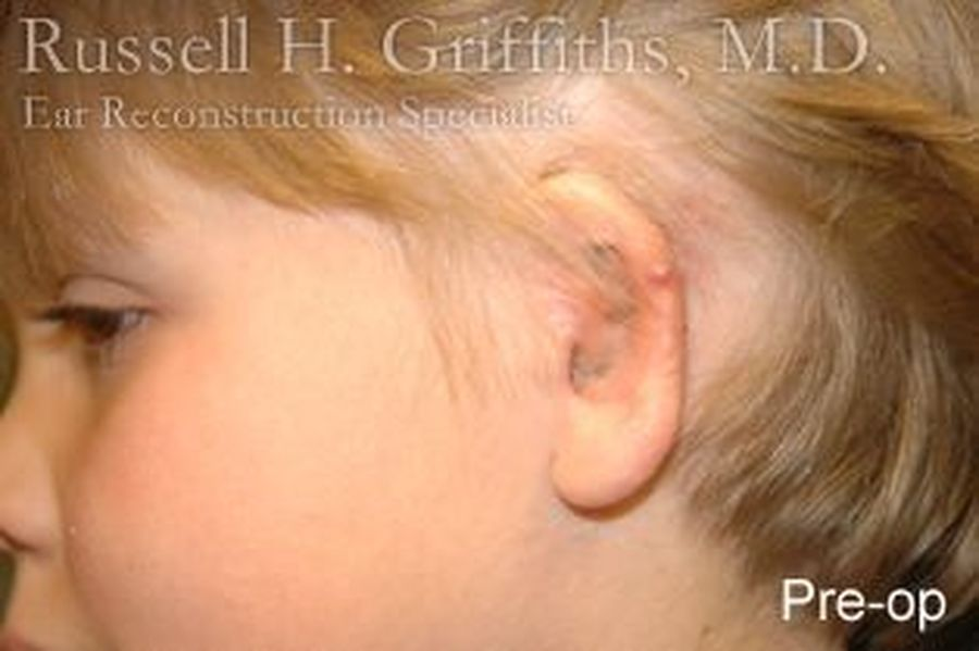 Revision Ear Surgery: Side view of a child before her surgery.