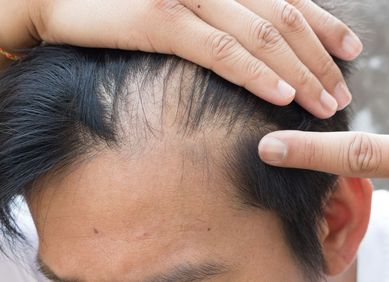 Man pulling back hair and pointing to thinning area