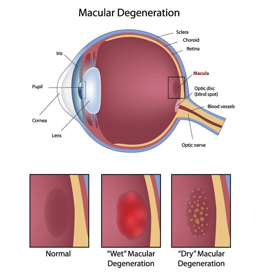 dry vs wet age-related macular degeneration
