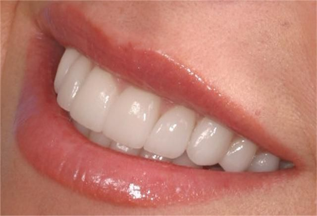 close-up photo of a smile