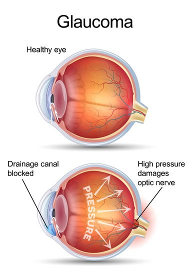 Eye with glaucoma compared to a healthy eye.