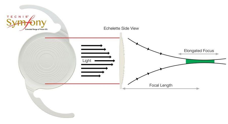 diagram of technis symfony lens