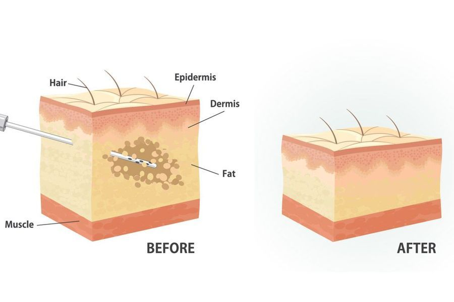 Before and after images of the fat extraction process.