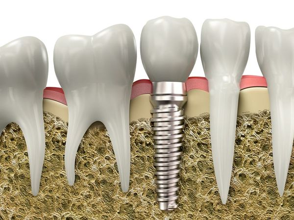 Illustration demonstrating how the metal post of an implant compares to your natural tooth roots.