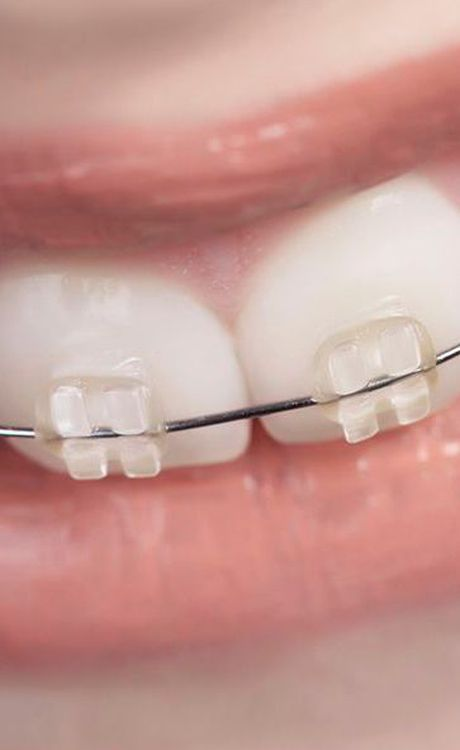 Image of braces with clear brackets