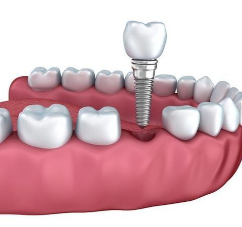 Illustration of a dental implant in a tooth socket