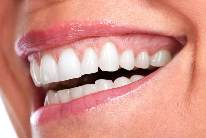 A woman with excess gum tissue smiles broadly