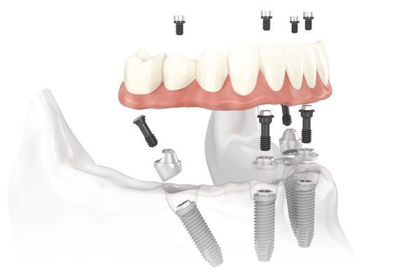 Demonstration of how a denture is fixed onto implants in the jaw.