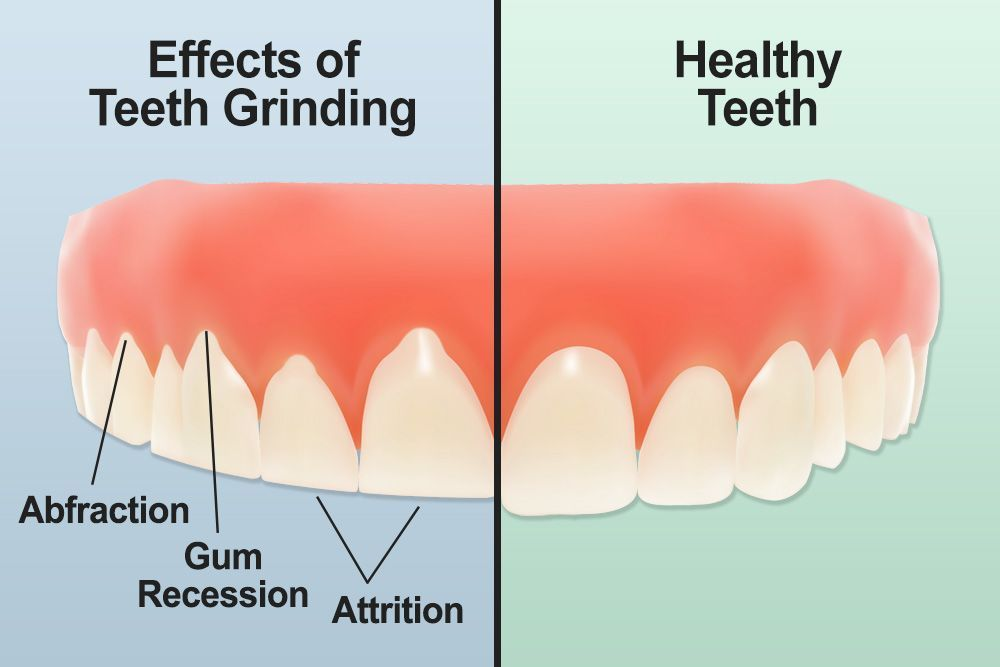 Illustration of effects of bruxism