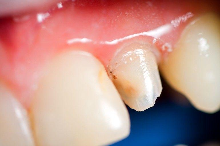 Damaged tooth